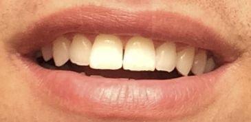 Zahnfarbe a1 oder a2